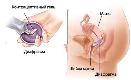 контрацептив диафрагма
