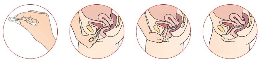 противозачаточные контрацептивы Кольцо НоваРинг